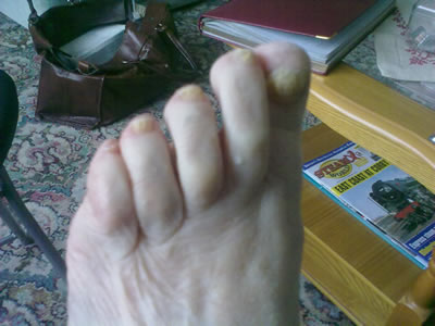 Thick Toenails - After