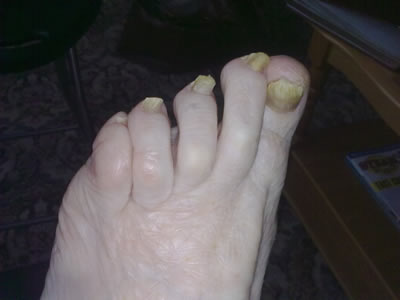 Thick Toenails - Before